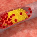 ¿Cuál es el nivel adecuado de colesterol?