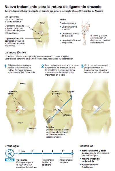 infográfico operación del ligamento cruzado