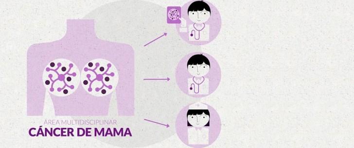 Cáncer de mama: síntomas y tratamientos