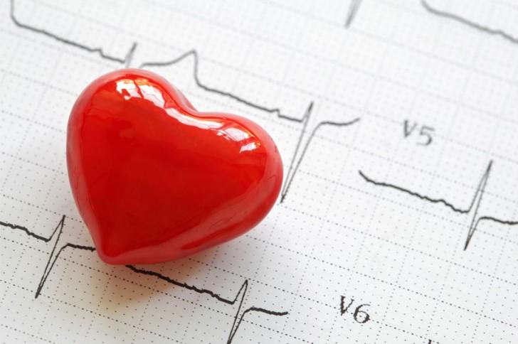 Cómo reparar el estrechamiento de las arterias carótidas para prevenir un ictus